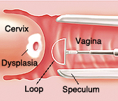 View of colposcope in vagina