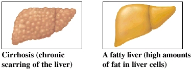 Images of liver with cirrhosis and fatty liver
