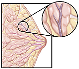 Cutaway view of breast with tumor
