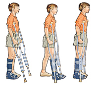 Image of girl on crutches
