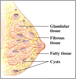 Image of fibrocystic breasts