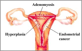 Cutaway view of uterus
