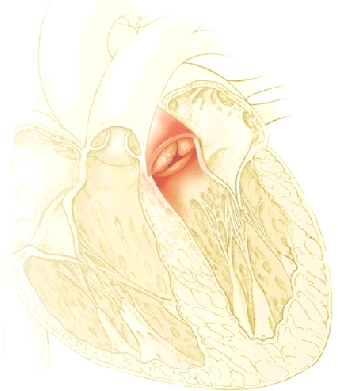Image of aortic valve