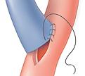 Image of artery graft