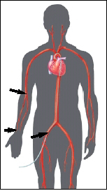 Insertion sites may be in the groin or the arm