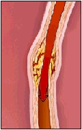 The blood flow to the heart muscle increases