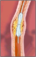 The balloon compresses the plaque against the artery wall