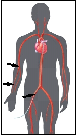 Insertion sites may be in the groin or the arm.