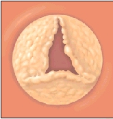 Cutaway view of heart