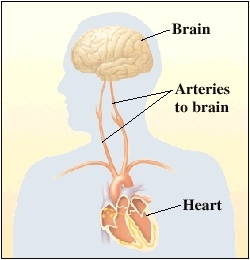 View of brain, arteries and heart
