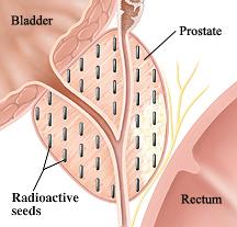 image of bladder