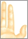 Image of flexor tendon