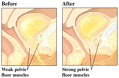 Images of strong and weak pelvic floors