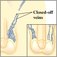 Cutaway view of veins
