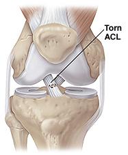 Cutaway view of knee