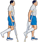 Image of man on crutches