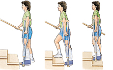 Image of woman on crutches