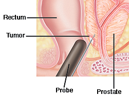 Cutaway view of prostate