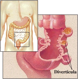 Image of normal diverticula