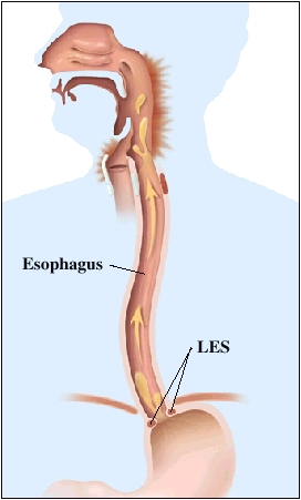 Image of esophagus