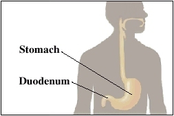 Image of stomach and duodenum