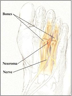 Cutaway view of foot