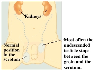Image of undescended testicle between groin and scrotum