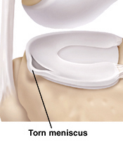Image of meniscus